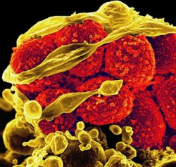 Практика органического производства благотворно влияет на устойчивость к антибиотикам