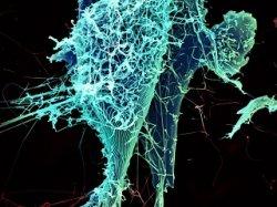 Вирус Эбола начал мутировать